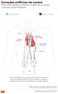 Infográfico mostra como funcionam os corações artificiais da menina Lorena (Foto: Igor Estrela e Alexandre Mauro/G1)