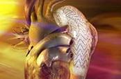 endovascular